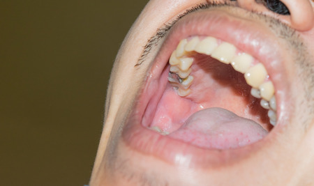 yellow teeth: Dental cavities, bad teeth yellow teeth broken fillings.