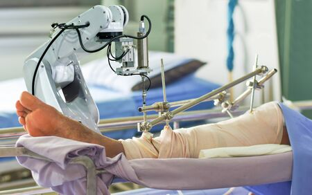 Medical robot arm the technology artificial intelligence patient treatment