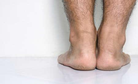 Men a feet skin cracked heels 스톡 콘텐츠 - 155137711