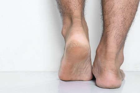 Men a feet skin cracked heels 스톡 콘텐츠 - 155137668