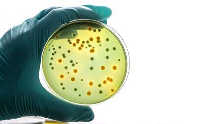 Main gantée tenant une boîte de Pétri Croissance de la culture des bactéries sur milieu gélosé en salle de microbiologie. Bactéries jaunes et vertes sur une boîte de Pétri dans la main d'un scientifique sur fond de laboratoire