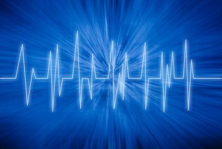 curve line: Heart rhythm