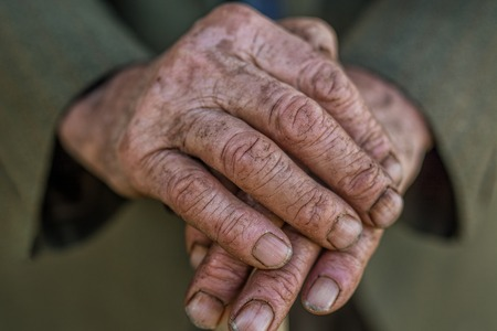puckered: hand of a senior man holding a cane