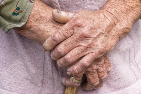 老化 - 非常に古い年配の女性は、しわの多い皮膚を手