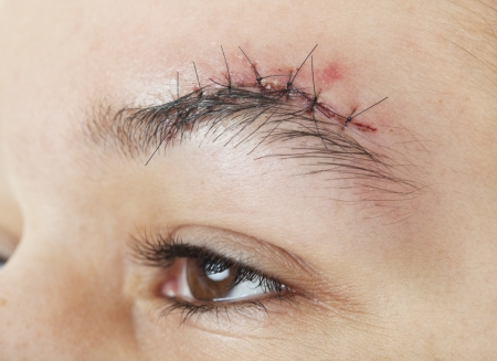 A gash above the eyebrow that has just received 7 stitches to close it up