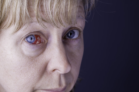 Close up of a womans face showing a red bloodshot eye. Shot against a plain blue background providing copy space.