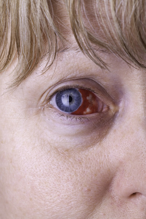 Close up of a womans face showing a badly bloodshot eye.