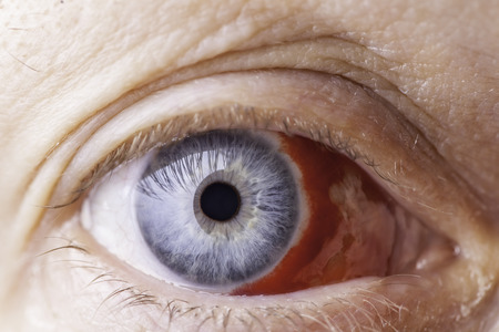 Close up of a red bloodshot eye.