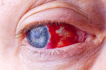 Bloodshot eye. Close-up macro image of a very red bloody eyeball. Bleeding damage in the eye Banque d'images
