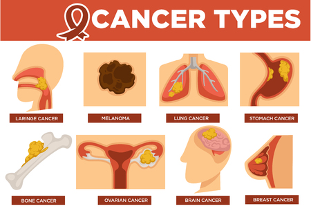 Cancer types poster with kinds of disease vector