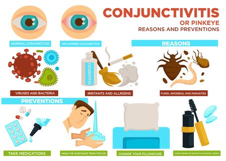 Conjunctivitis of pinkeye redenen en preventie poster vector. Virussen bacteriën, irriterende stoffen en allergenen, schimmels en amoeben met parasieten. Medicatie en substantie uit oog wassen, kussensloop verwisselen