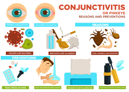 Zapalenie spojówek lub przyczyny różowego oka i zapobieganie wektor plakat. Wirusy, bakterie, czynniki drażniące i alergeny, grzyby i ameby z pasożytami. Leki i substancję zmyj z oka, zmień poszewkę