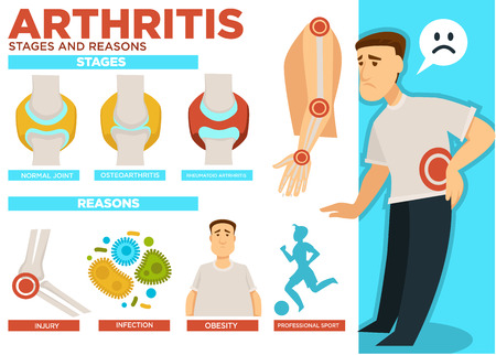 Arthritis stages and reasons of disease poster vector Stock Photo