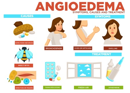 Angioedema symptom, causes and treatment of disease vector Stock Photo