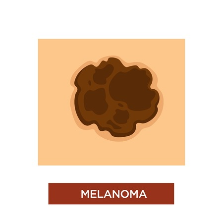 Skin cancer or melanoma disease dangerous mole vector birthmark or dark spot on human body treatment and chemotherapy dermatology and oncology carcinoma and nevus or malignant or benign tumor.