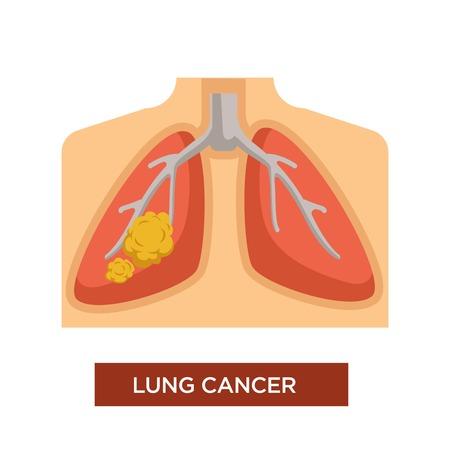 Oncologie ou cancer du poumon et maladie ou maladie tumorale vecteur poitrine humaine avec danger de tabagisme tumeur maligne ou bénigne et chimiothérapie ou traitement maladie du carcinome et dommages à la santé de la thérapie. Vecteurs