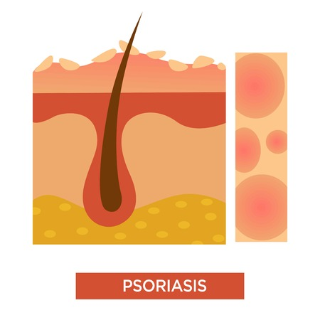 Psoriasis skin disease or illness dermatology vector illustration