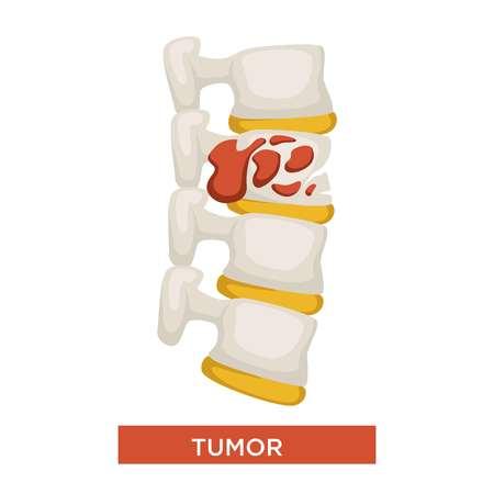Maladie du squelette tumoral ou médecine des os du cancer vecteur inflammation et gonflement maux de dos et douleur soins de santé et traitement maladie de la colonne vertébrale destruction de l'épine dorsale partie du système squelettique humain isolé.
