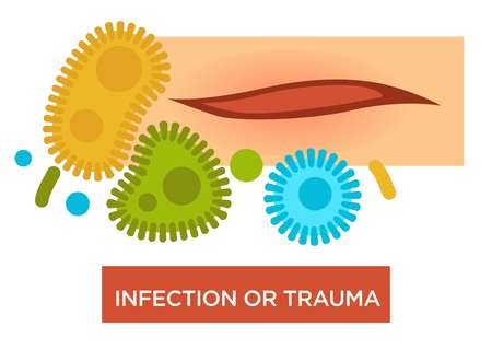 Skin injury scratch and bacteria or germs infection or trauma vector wound with blood microbes healthcare and treatment medical disinfection disease prevention sickness or illness risk medicine. Illustration