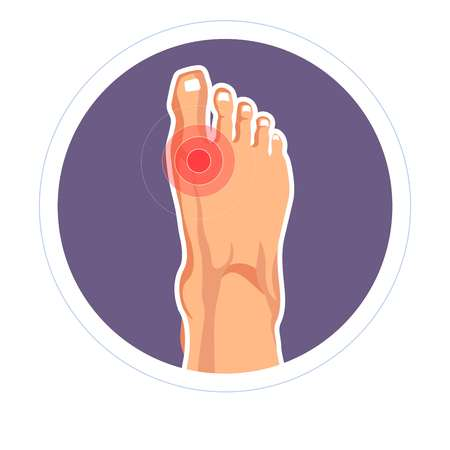 Arthritis foot joint injury toe pain or skeleton damage vector gout disease orthopedic problem arthritis and rheumatology pain or ache swelling hyperuricemia and osteoarthritis skeletal illness.