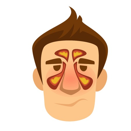 Respiratory sinuses inflammation antritis isolated male head vector sinusitis pus in nasal cavity disease or illness breathing problem medicine and healthcare treatment nose swelling and redness. Vector Illustration