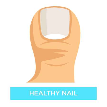 Healthy nail toenail fungus infection prevention medicine and healthcare 版權商用圖片 - 118584771