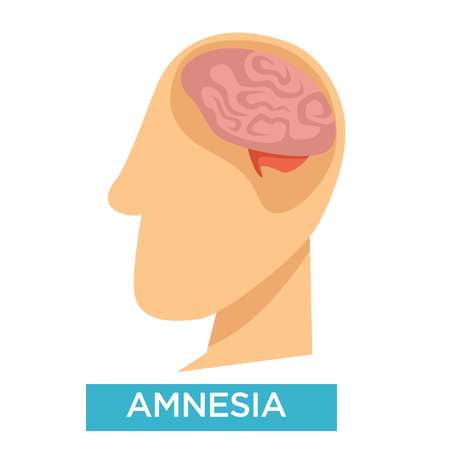 Alzheimer disease amnesia symptom brain damage isolated head vector medicine and healthcare disease or illness dementia remembering and memorizing problem neurological sickness forgetting memory loss