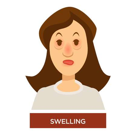 Allergy or angioedema swelling symptom bags under eyes and inflammation isolated vector female character with face puffiness allergic reaction medicine and healthcare disease treatment and prevention. Vector Illustration
