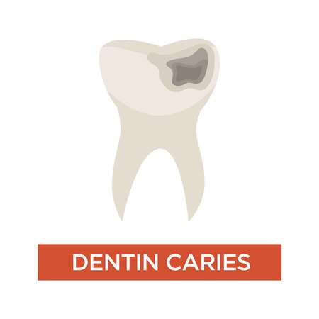 Dentistry tooth damage dentin caries stage dental care isolated vector unhealthy teeth mouth cavity decay and jaw destruction oral hygiene medicine and healthcare disease or illness symptom toothache.