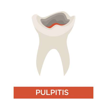 Pulpitis tooth decay caries stage dentistry and dental health vector medicine and healthcare oral cavity disease or illness symptom toothache damaged teeth removal procedure periodontitis development.