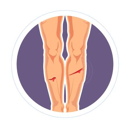 Bleeding injury skin cut or scratch legs pain isolated vector icon legs bleeding wound medicine and healthcare blood running stop and treatment trauma infection prevention cover tissue damage.