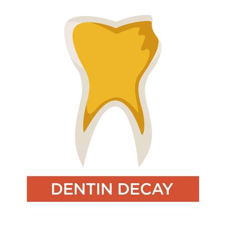 Dentistry dentin decay isolated tooth dental care medicine and dentistry vector stomatology mouth cavity treatment infection periodontal jaw damage disease or illness toothache teeth destruction Stock Vector - 124448176