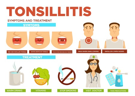 Tonsillitis symptoms and treatment medicine and healthcare doctor and patient 矢量图像