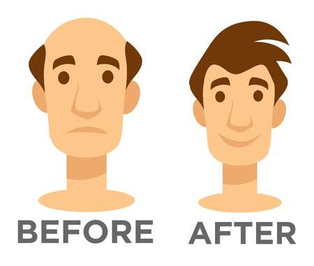 Before and after effect hair transplantation bald man and guy with hairstyle vector isolated character head baldness problem solving surgery male beauty hairdo fue and fut technologies treatment. 向量圖像