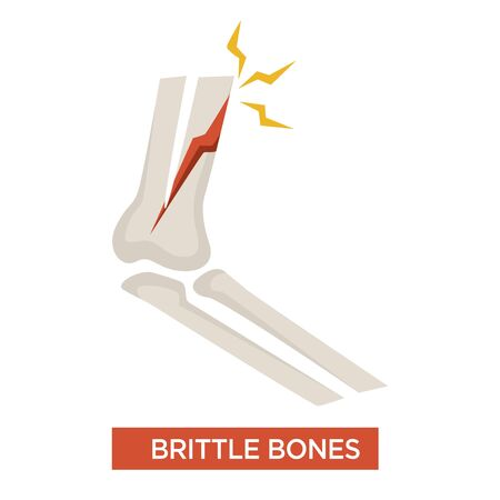 Brittle bones osteoporosis health issue concept