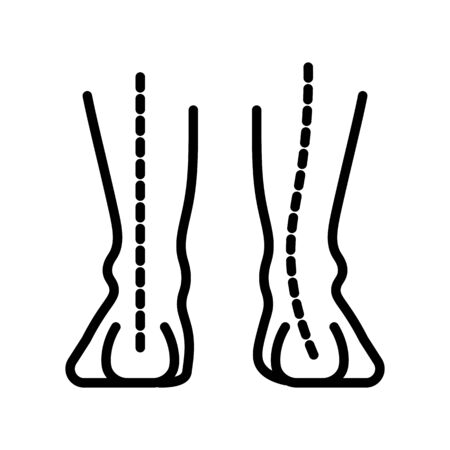 Ankle arch, human foot pathology isolated line icon Ilustrace