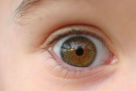 Child's Eye