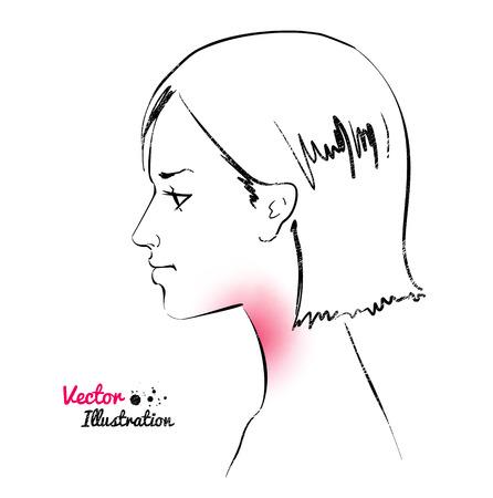 cold sore: Vector illustration of sore throat concept. Illustration