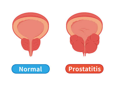 Male healthy and unhealthy prostate, prostate hypertrophy and inflammation isolated on white background