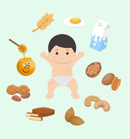 Itchy and allergic foods for baby boys, boys, wheat, eggs, milk, nuts, walnuts, walnuts, cashews, almonds, dried beans, peanuts, honey, set