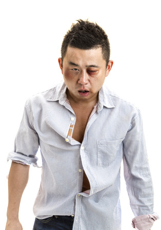 A front view of a wounded Asian man after a fight with isolated white background.