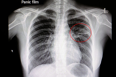 Xray film of a patient with pneumonia in his left middle lung 写真素材