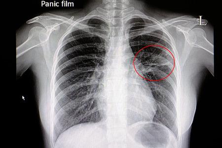 Xray film van een patiënt met longontsteking in zijn linker middenlong