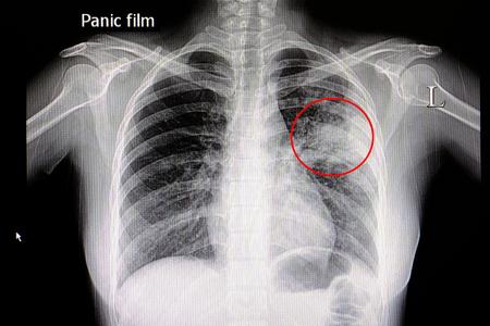 radiographie d & # 39 ; un patient avec la pneumonie dans son torse gauche gauche