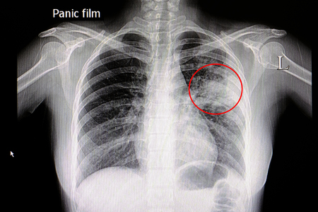 Xray film of a patient with pneumonia in his left middle lung