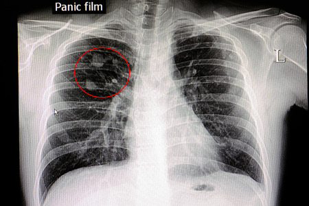 Xray film of a patient with lung nodules in his right upper lung Stock Photo
