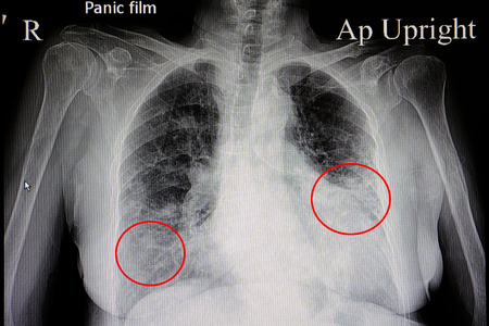 a chest x-ray film of a female patient showing cardiomegaly and bilateral pulmonary congestion