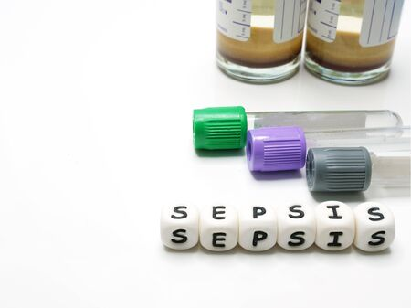 test tubes and hemoculture bottles for taking blood samples for diagnostic examination in Sepsis condition