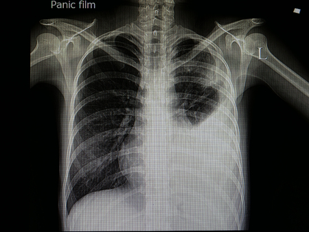 x ray film of patient with pneumonia and left plural effusion