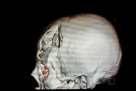 3-D rendering image of a patient skull with traumatic brain injury showing compression fracture of left temperoparietal bone, fracture of left orbital rim and left zygomatic fracture. Reklamní fotografie